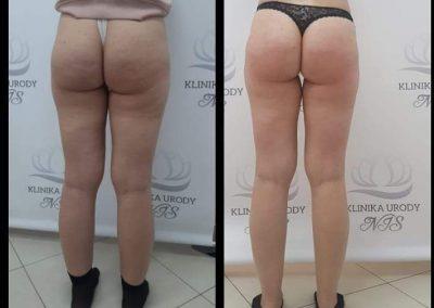 Odchudzanie i redukcja cellulitu